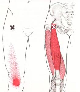大腿直筋TP